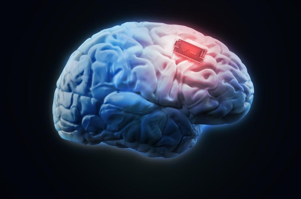 პირველად ისტორიაში, ტვინის იმპლანტის გამოყენებით, მეცნიერებმა ადამიანის მეხსიერება გააძლიერეს