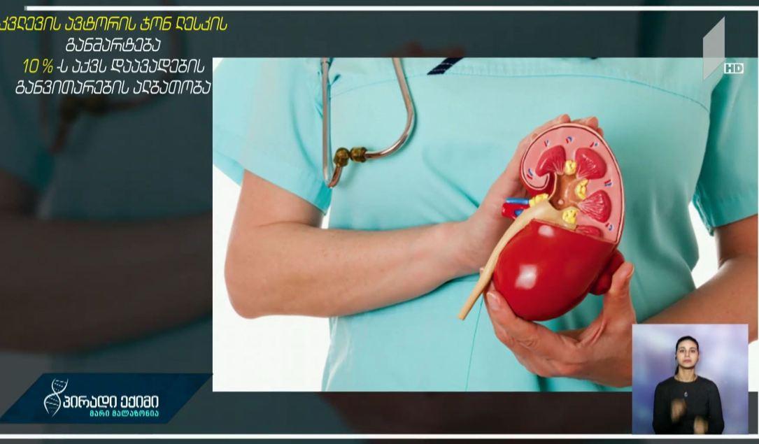 #პირადიექიმი შარდ-კენჭოვანი დაავადებების მაჩვენებლის ზრდა და რისკ-ჯგუფები