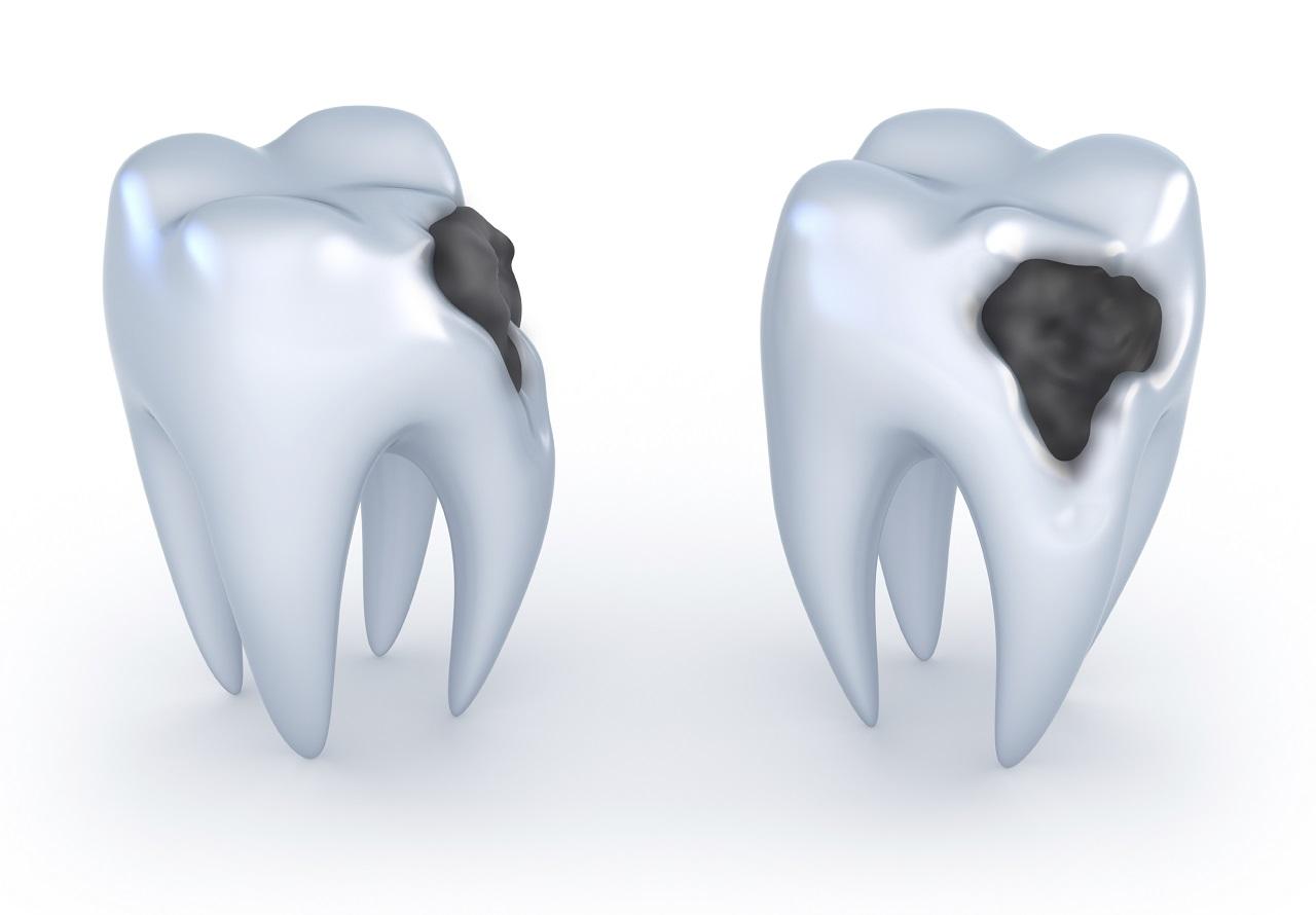 შექმნილია ახალი სამკურნალო საშუალება, რომელიც კბილის ღრმულებს თავისით აღადგენს