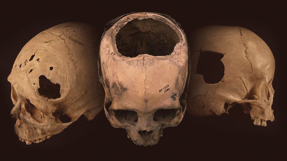 ინკების ქირურგები თავის ქალის ოპერაციებს გაცილებით უკეთ აკეთებდნენ, ვიდრე 400 წლის შემდეგ ამერიკელები