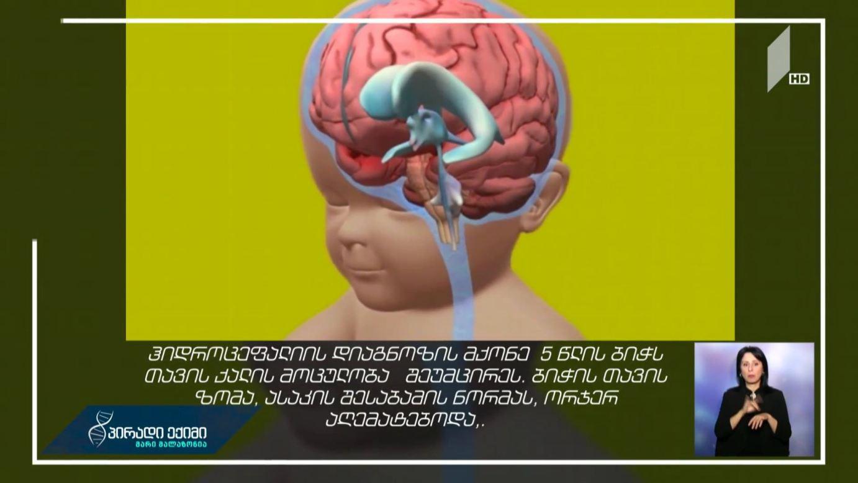 #პირადიექიმი თავის ქალა-ტვინის უნიკალური ოპერაცია საქართველოში