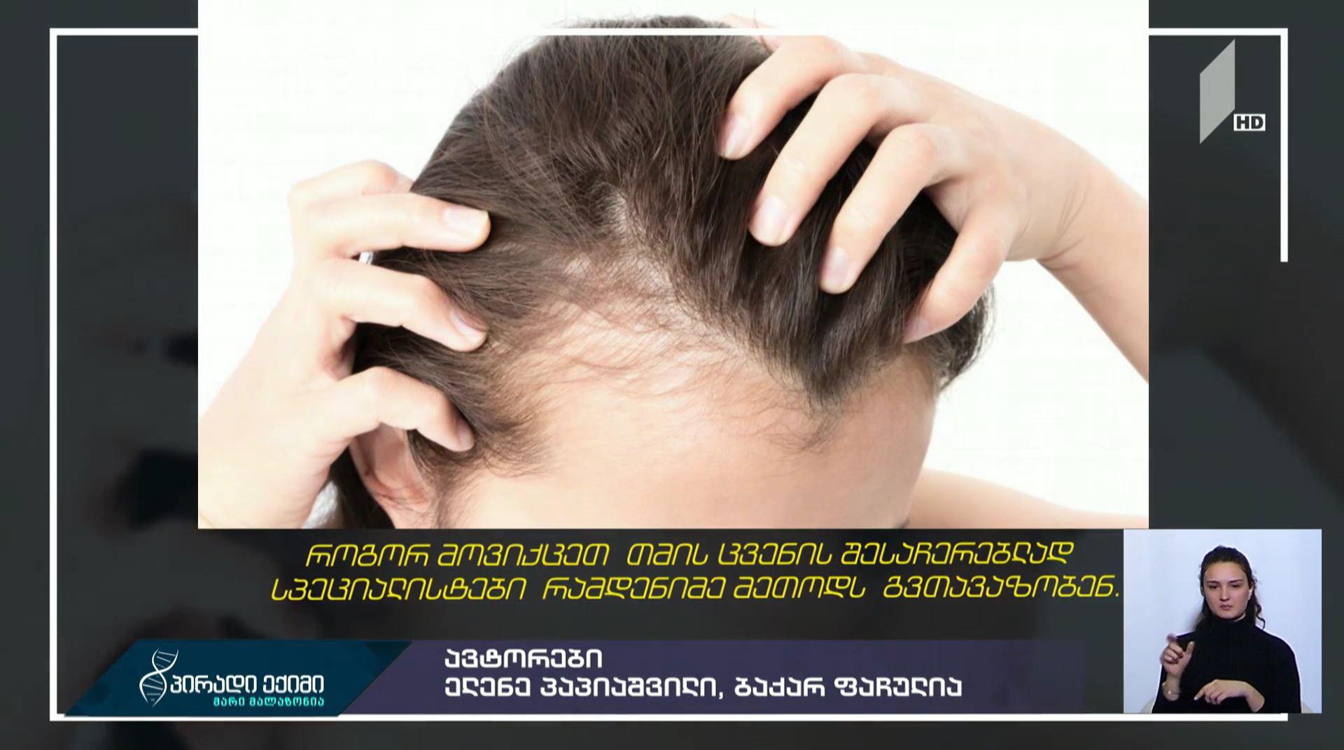 #პირადიექიმი როგორ შევაჩეროთ თმის ცვენა - სპეციალისტების რჩევები