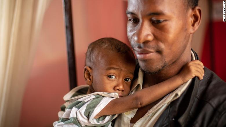 Более 300 человек умерли от кори на Мадагаскаре