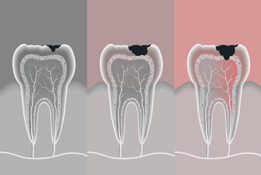 კბილის კარიესის ერთ-ერთი გამომწვევი შესაძლოა, ჩვენივე იმუნური სისტემა იყოს