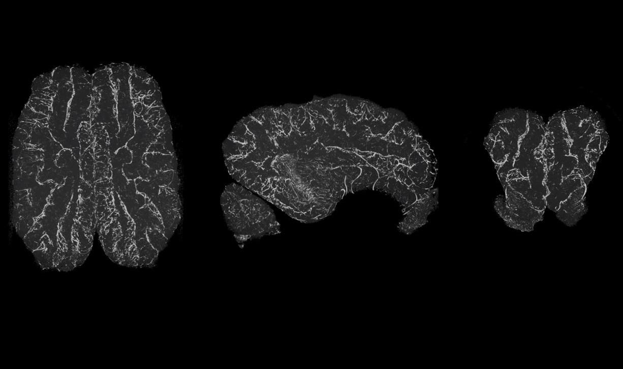 მეცნიერებმა მკვდარი ტვინის გარკვეული უჯრედული ფუნქციები აღადგინეს