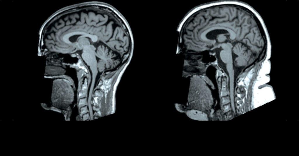 სიმსუქნე შესაძლოა, თავის ტვინის ზომის შემცირებას იწვევდეს - ახალი კვლევა