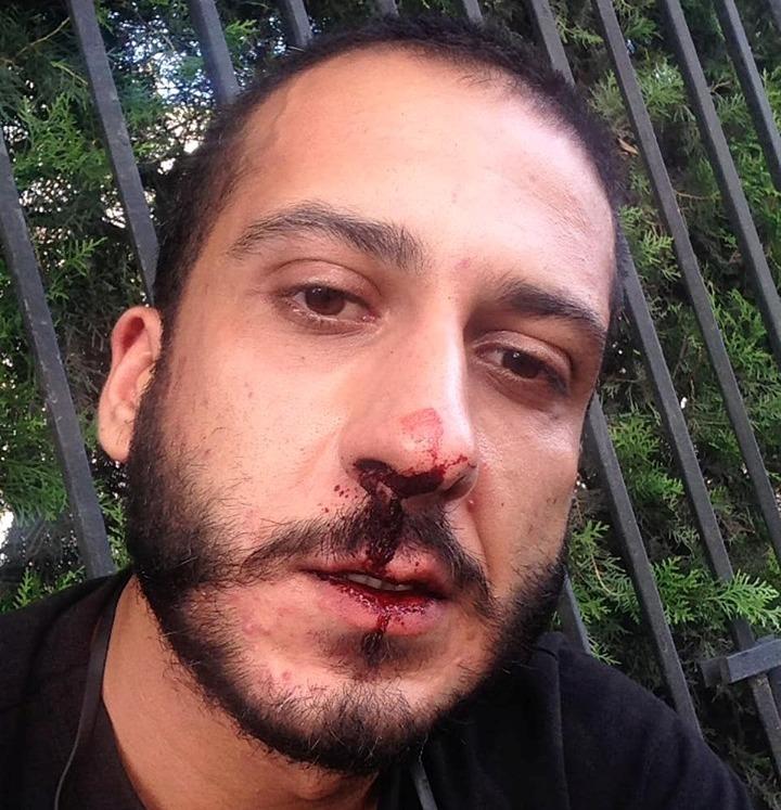 საქართველოს პირველი არხის ჟურნალისტი ნიკა მუხიგულაშვილი სამართალდამცველებმა სცემეს და დააკავეს, დამტვრეულია ვიდეოკამერაც
