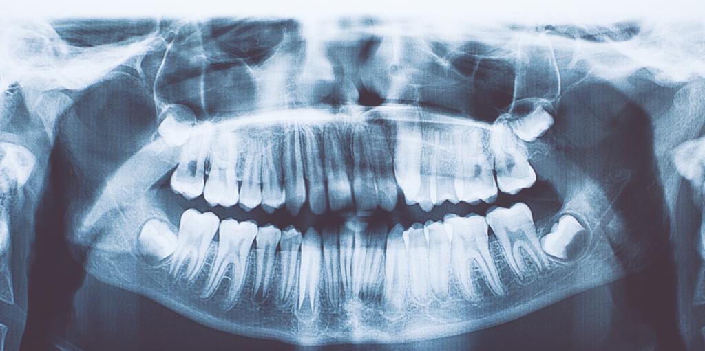 7 წლის ბიჭს სტომატოლოგებმა პირის ღრუდან 500-ზე მეტი კბილი ამოუღეს
