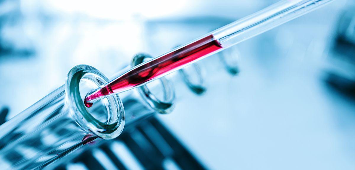 სისხლის ახალმა ტესტმა შესაძლოა, პაციენტის სიკვდილი 10 წლით ადრე იწინასწარმეტყველოს