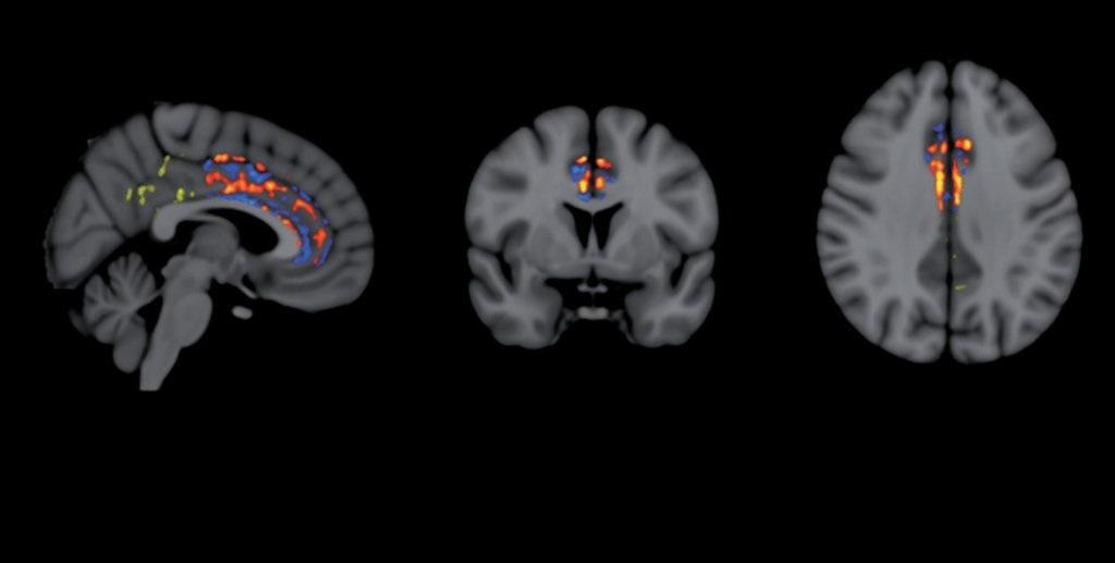 მეცნიერებმა რამდენიმე პაციენტში ალცჰაიმერის დაავადება უკუაქციეს - შედეგები იმედისმომცემია