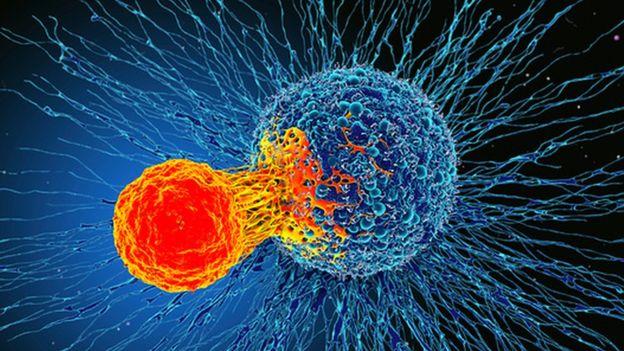 """""""ბიბისი"""" - ბრიტანელმა მეცნიერებმა კიბოს მკურნალობის """"უნივერსალურ მეთოდს"""" მიაკვლიეს"""