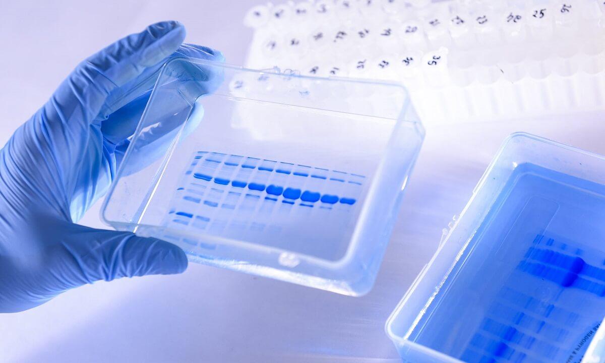 ოქსფორდის უნივერსიტეტი კორონავირუსის ვაქცინის გამოსაცდელად მოხალისეებს აგროვებს