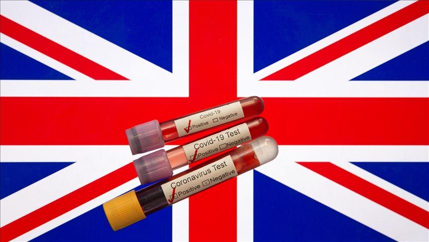 Անցած գիշեր  Մեծ Բրիտանիայում գրանցվել է Covid-19 –ով վարակի 2004  և մահացության 134 դեպք