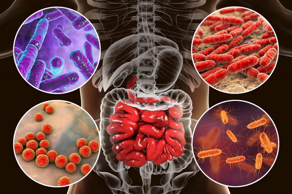ერთ-ერთი ყველაზე მწვავე ნეიროვასკულარული დაავადება ნაწლავის ბაქტერიებთან არის კავშირში — ახალი კვლევა