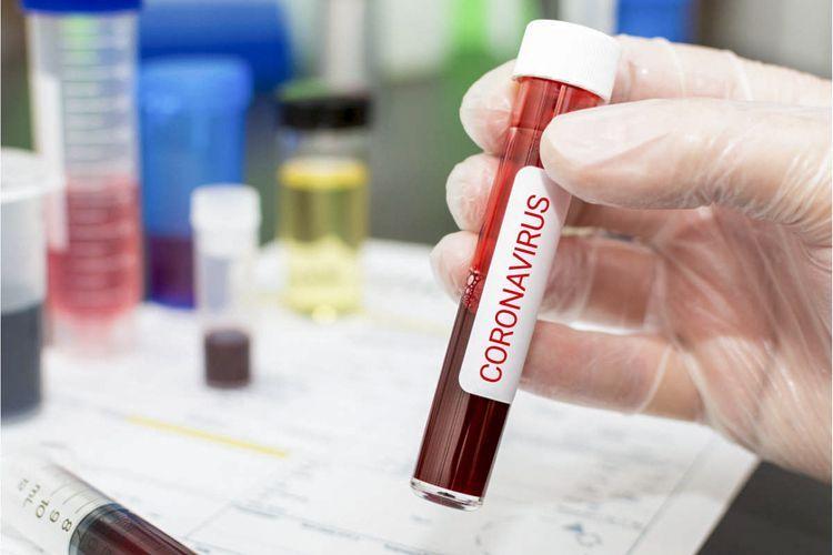 Azerbaijan reports 559 fresh coronavirus cases, 545 recoveries, 7 deaths