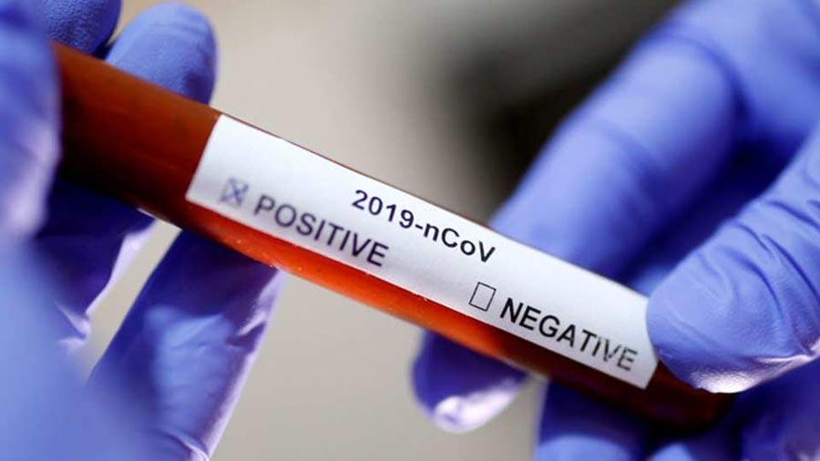 За прошедшие сутки в России выявлено 5204 случая инфицирования коронавирусом
