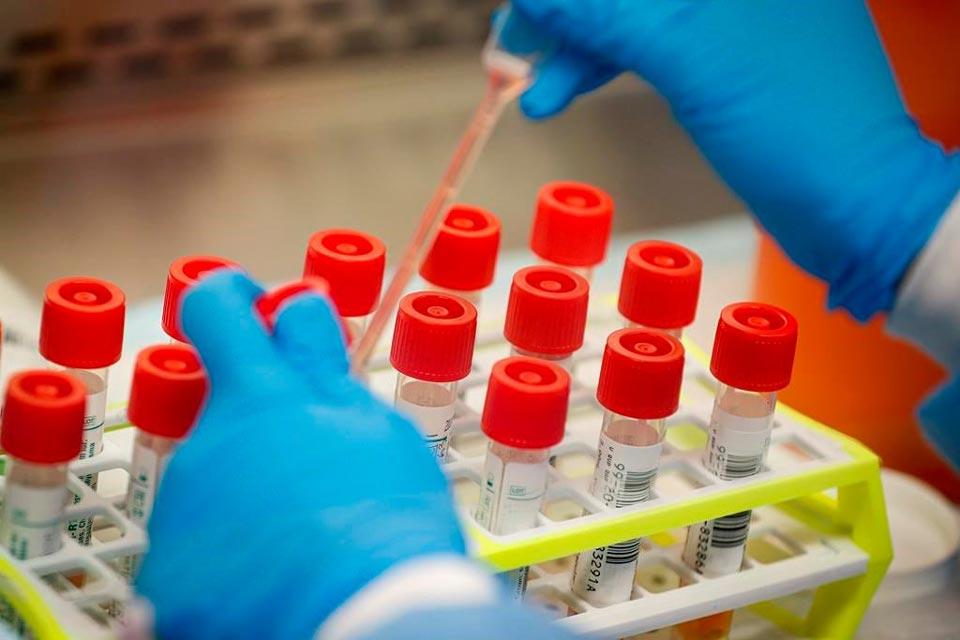 Azerbaijan confirms 98 new COVID-19 cases
