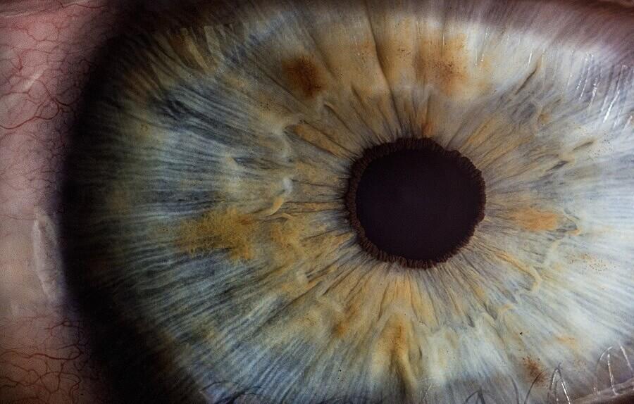 ზოგიერთ თევზს დაზიანებული თვალების აღდგენა შეუძლია და ამისათვის საჭირო გენები ძუძუმწოვრებშიც აღმოაჩინეს — #1tvმეცნიერება