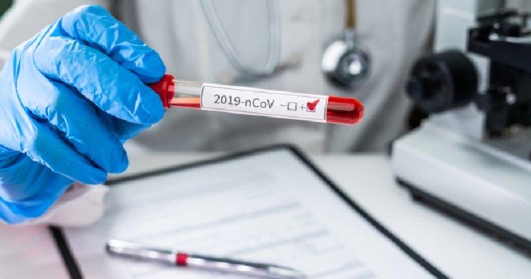 Occupied Abkhazia reports 49 new coronavirus cases