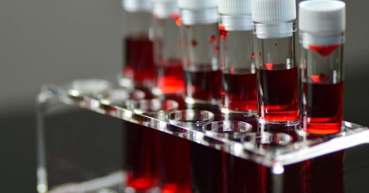 სულ უფრო მეტი კვლევა მიუთითებს, რომ COVID-19-ის რისკი და სიმწვავე შეიძლება, სისხლის ჯგუფზე იყოს დამოკიდებული — #1tvმეცნიერება