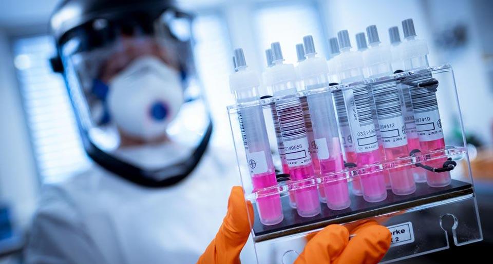 В России выявлено 25 487 новых случаев коронавируса, 524 пациента скончались