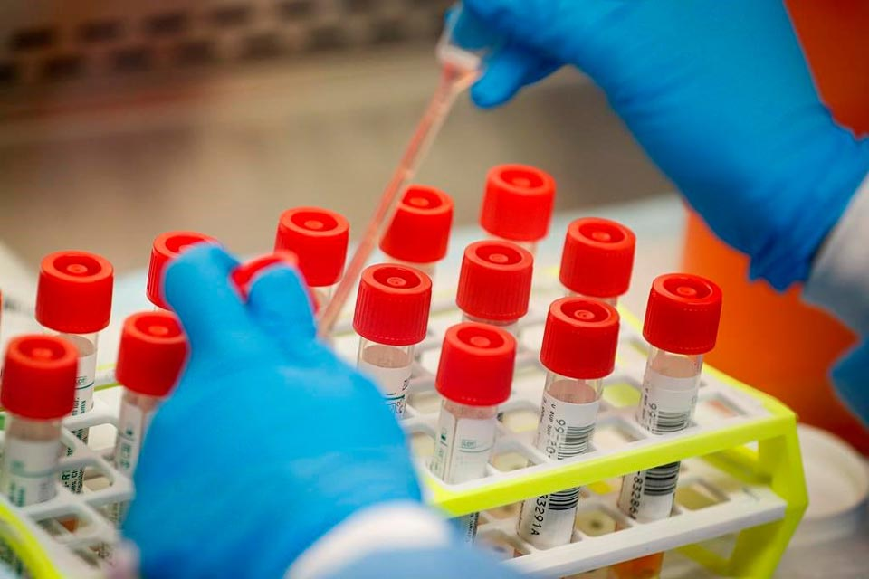 Ermənistanda koronavirusun 1 385 yeni halı aşkar edildi, 24 pasiyent vəfat etdi
