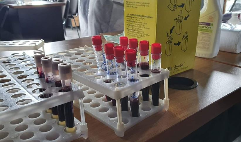 Quriyada koronavirusun 87 halı qeydə alındı