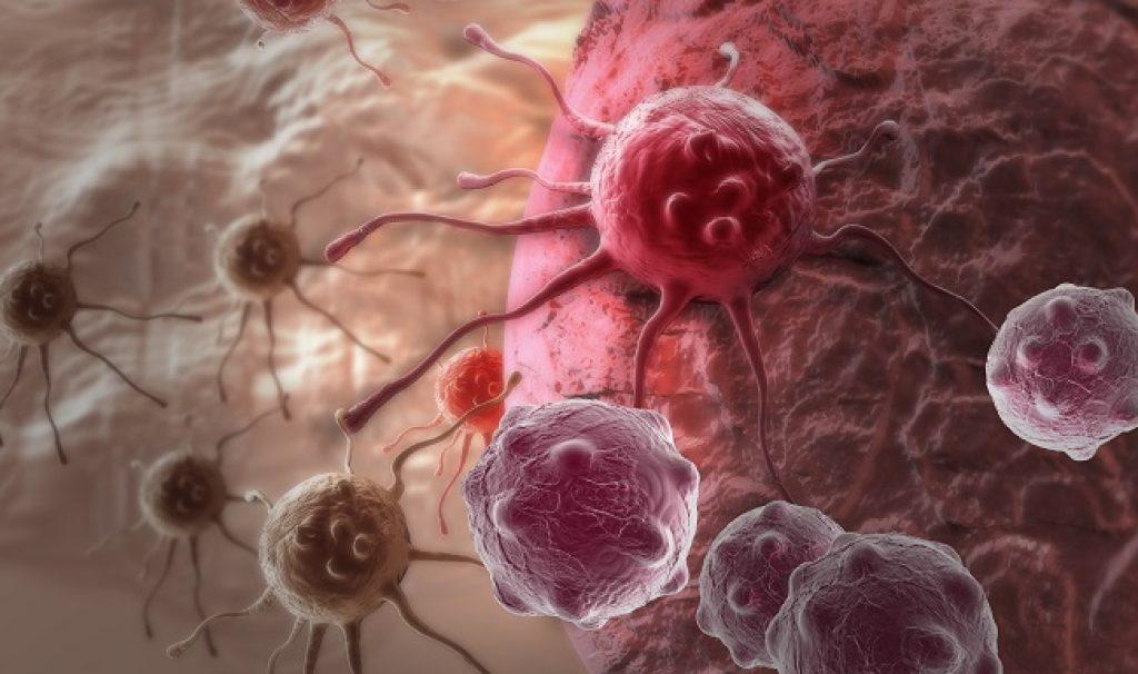 მკვლევრებმა ერთ-ერთი ყველაზე საშიში ტიპის ძუძუს კიბოს გამომწვევი გენი აღმოაჩინეს — #1tvმეცნიერება