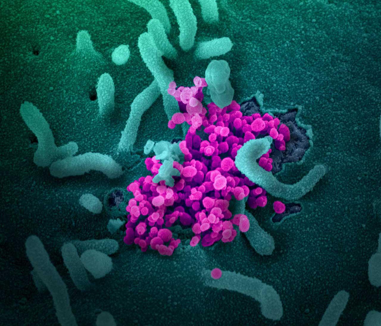 SARS-CoV-2-ის პოტენციური წარმოშობის შესახებ მეცნიერები ახალ მიმოხილვას აქვეყნებენ — #1tvმეცნიერება